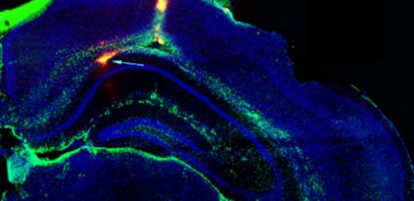 Green arrow points to the implant in the hippocampus of a mouse brain