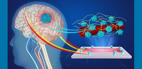 Artist's impression of the 3D microvessel-on-a-chip device for the study of glioblastoma.