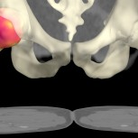 A computer generated image from a medical Computed Tomography X-ray (CT) data set of the hips by Dr Graham Treece